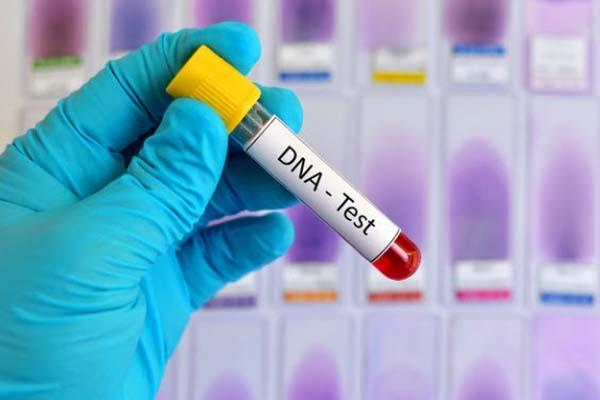 xét nghiệm huyết thống trước sinh không xâm lấn