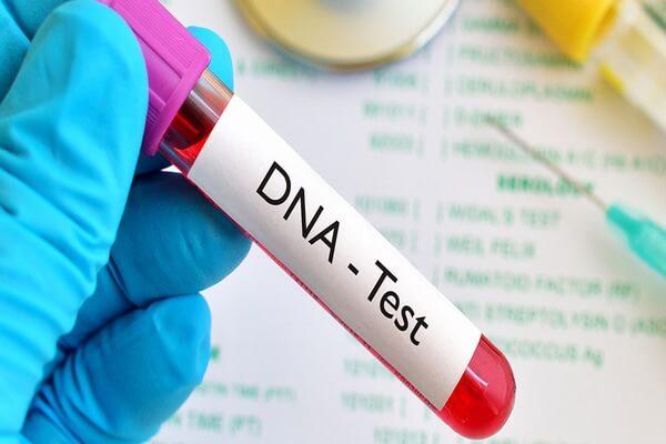 Xét nghiệm ADN bằng mẫu máu mẹ được thực hiện đơn giản, nhanh chóng.